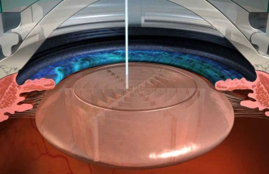 Mikroincízie laserom