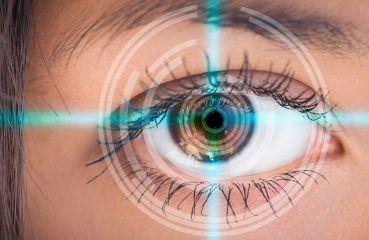 Rozdiely medzi jednotlivými metódami laserových operácií